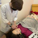 各鍼灸師の美容鍼の話